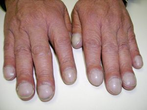 Finger Clubbing Symptoms of Asbestosis